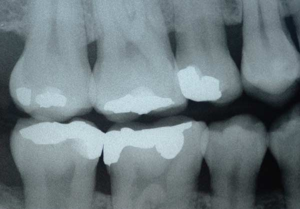 bitewing-x-rays-image