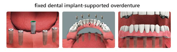 implant overdenture fixed mississauga dentist sferlazza