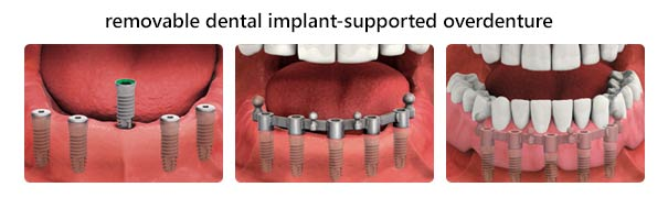 implant-overdentures-removable mississauga dentist sferlazza
