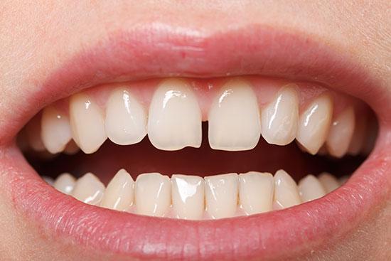 diastema-tooth-space-mississauga-dentist