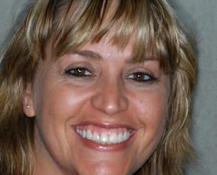 dental bonding cosmetic dentist mississauga