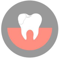 dental bonding mississauga dentist