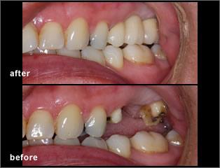 dental bridge dentist in mississauga