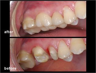 dental crown dentist in mississauga