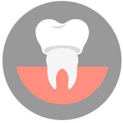 dental crown mississauga dentist