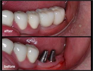 dental implants dentist in mississauga