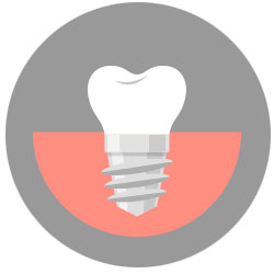 dental implants mississauga dentist dr sferlazza