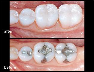 dental onlay dentist in mississauga