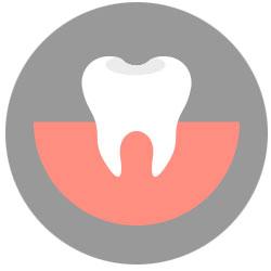 dental onlay inlay mississauga dentist