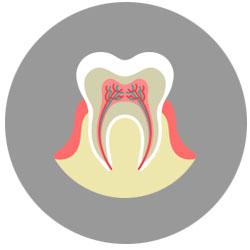 gum disease treatment in mississauga