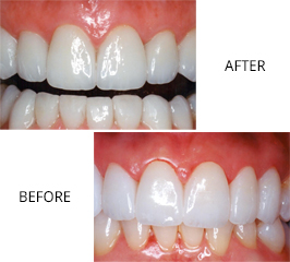 gum disease treatment mississauga dentist