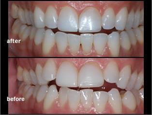 invisalign clear braces aligner dentist mississauga