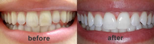 porcelain dental veneers in mississauga