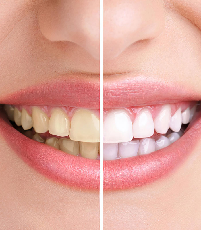 professional teeth whitening in mississauga
