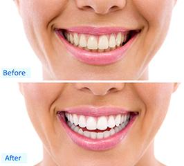teeth whitening mississauga dentist